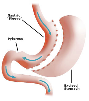 Roux en-Y Gastric Bypass Surgery